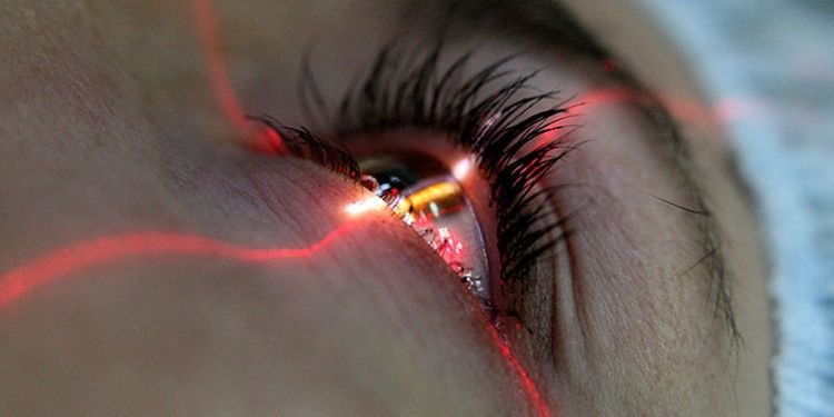 Bakıda lazer korreksiyası: eynəkdən həmişəlik qurtulmağın yolları - QİYMƏTLƏR, fotoşəkil-1